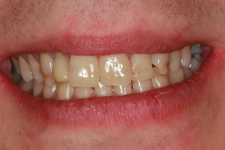 Patient1 - Before veneers attached to teeth