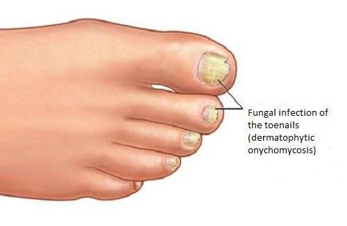 Svampeinfektioner kan forekomme overalt på kroppen, men de mest almindelige områder er fingernegle, tånegle, fødder eller fugtige områder, såsom armhulerne.