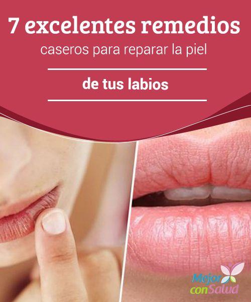 7 excelentes remedios caseros para reparar la piel de tus labios  A pesar de que los labios están considerados como uno de nuestros atractivos físicos, pocas veces le prestamos atención a la delicada piel que los recubre.