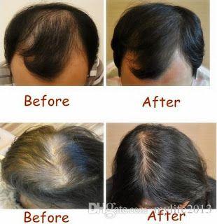 Si vous rêvez des cheveux plus longs et volumineux, vous n'avez qu'à appliquez l'une de ces astuces suivantes qui servent à faire repousser les cheveux et de lutter contre la chute des cheveux d'une façon naturelle et efficace