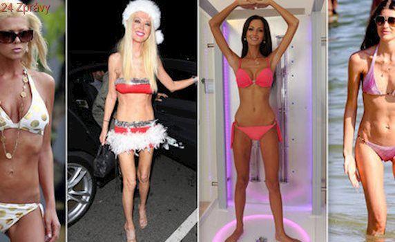 Slavné anorektičky: Které celebrity zasáhly poruchy příjmu potravy?