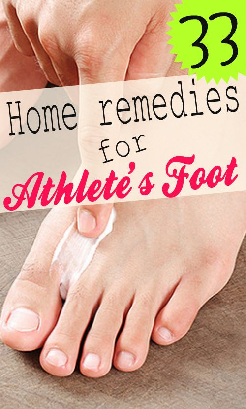 You can usually treat athlete's foot yourself at home by using these home remedies and taking care of your feet