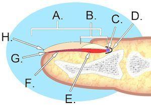 Anatomy of the basic parts of a human nail. A. Nail plate; B. lunula; C. root; D. sinus; E. matrix; F. nail bed; G. hyponychium; H. free margin. Diagram Credit: Wikipedia - KDS444