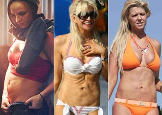Bad celebrity plastic surgery before and after. See how Tara Reid ruined her body with liposuction.
