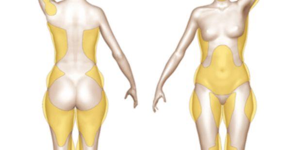 Lidé s nadváhou obvykle ke svému problému nejsou lhostejní a snaží se zhubnout. Nicméně současný moderní běh života a nedostatek času nám často brání konzumaci zdravých potravin či cvičení. Zlozvyky, stres, sedavý způsob života a málo fyzické aktivity si časem vybírají svou daň v podobě obezity. Lidé nepřibírají ze dne na den. Trvá to obvykle