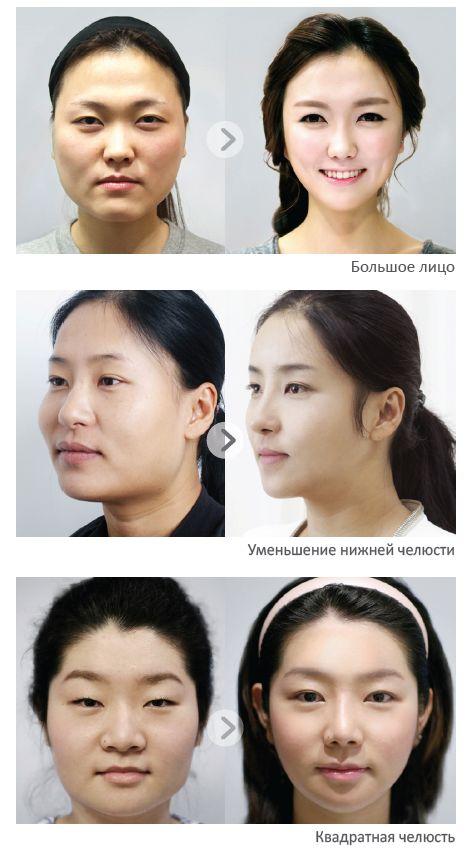 Пластическая хирургия Кореи - коррекция нижней челюсти2