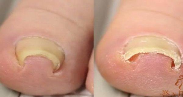 Zbavte sa zarasteného prsta samy.. Túto ľahkú a super techniku vám doktori nepovedia!