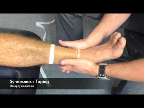 How to Tape Syndesmosis High Ankle Sprain with Rigid Strapping Tape