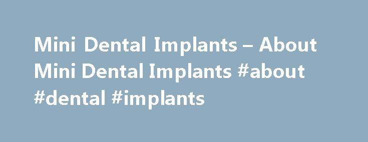 Mini Dental Implants – About Mini Dental Implants #about #dental #implants http://dental.remmont.com/mini-dental-implants-about-mini-dental-implants-about-dental-implants-2/  #about dental implants # ABOUT MINI DENTAL IMPLANTS Welcome to Mini Dental Implant Dentistry Our focus is on providing you with the revolutionary benefits of mini dental implant dentistry. This unique approach to modern dentistry offers new opportunities for individuals who have lost one or more teeth. For the first…