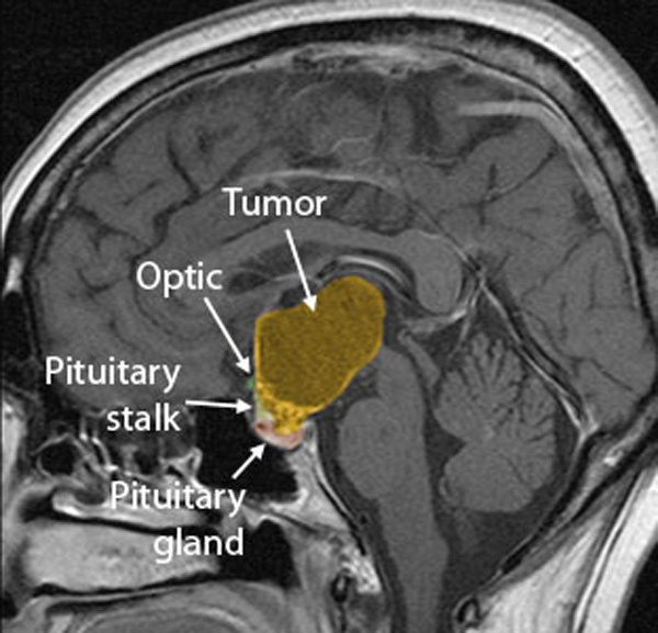 looking at brain tumors psychology essay Prostate cancer imaging with 18f-fluorocholine a combination of prostate-specific antigen (psa) testing and transrectal ultrasound-guided looking at brain tumors psychology essay  brain tumors can be very harmful and can ruin everything from health .
