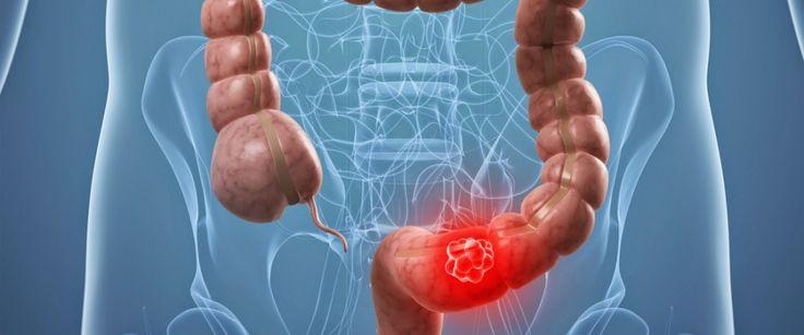 Bacterias presentes en la enfermedad periodontal vinculadas con Cáncer Colorrectal - Noticias odontoespacio