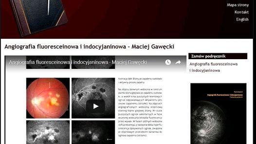 http://dragons-house.com/ksiazki/angiografia/angiografia-fluoresceinowa.html ANGIOGRAFIA