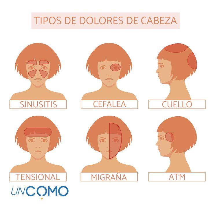 Tipos de dolores de cabeza. Cada parte de nuestro cráneo puede provocar un dolor de cabeza distinto.  #saluduncomo #saludybienestar #dolordecabeza #migraña #cefalea #jaqueca