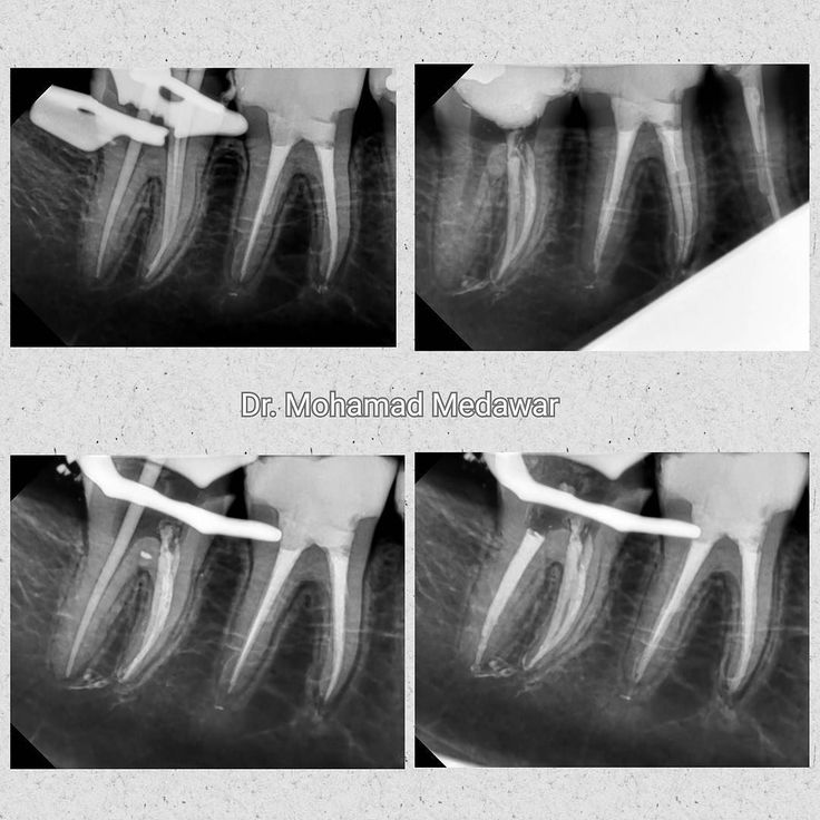 2 mandibular molars ;) #goodnight my friends #endodoncia #endodontia #endodontics #endodontic #rootcanal #rootcanals #rootcanaltreatment #endodontist #rct #beirut #kuwait #savingteeth #dentist #dentistry @dental8clinic #dental8_clinic #dental8clinic #dentalmicroscope #microendodontics #revos #micromega by dr.medawar.endodontics Our Root Canals Page: http://www.myimagedental.com/services/general-dentistry/root-canals/ Other General Dentistry services we offer…