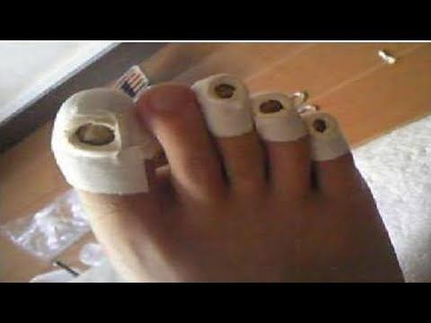 ★Особенности применения уксуса для лечения грибка ногтей. Рецепты для лечения онихомикоза. - YouTube