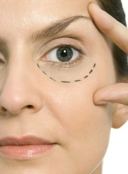 Dry Skin Around Eyes
