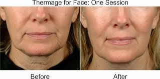 Get rid of those loose jowls. Thermage is KEY. Unlock your potential. 561.655.1000
