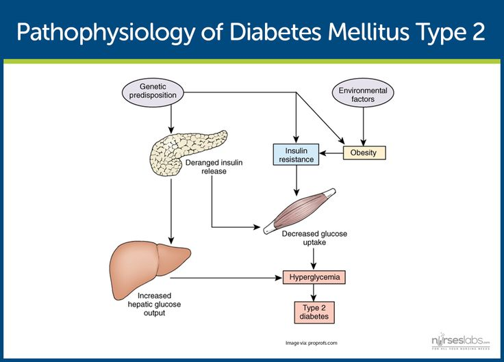 Pathophysiology of Diabetes Mellitus Type 2