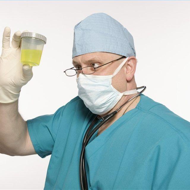 remedios caseros acido urico alto que tomar para bajar el acido urico medicina para quitar la gota