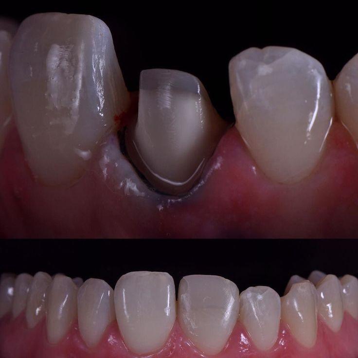 Today's mini preparation......#dental #dentist #dentists #dentalclub #dentalclubzug #dentalclubswiss #veneer #veneers #crown #swiss #swissdent #swissmade #swissquality #swissmonamour #dentalphotography #happy #zahnarzt #zahnarztpraxis #aestetics #aesthetic #aesthetics #esthetics #aestheticdentist #zahnarztzug #zahnarztluzern by doc_dental_club Our Dental Veneers Page: http://www.myimagedental.com/services/cosmetic-dentistry/veneers/ Other Cosmetic Dentistry services we offer…