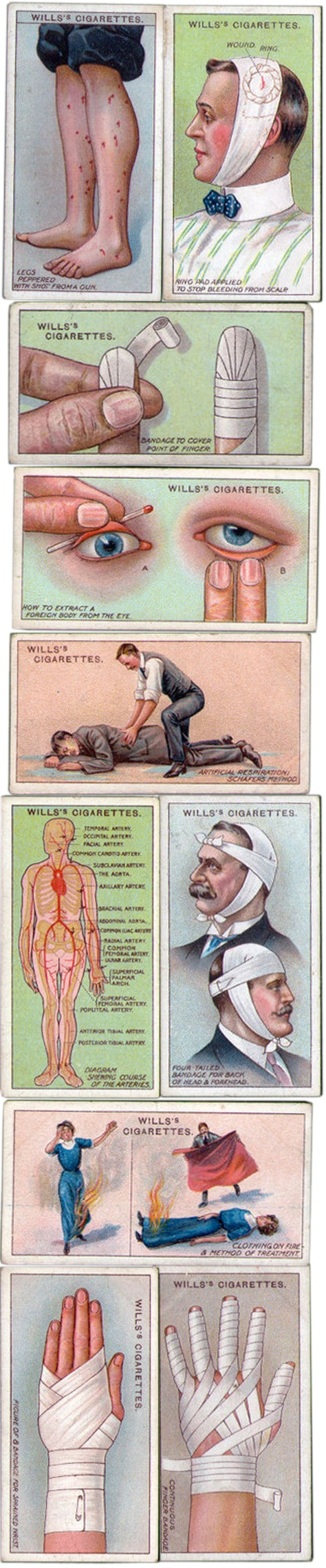 Wills cigarette cards - first aid,  1913