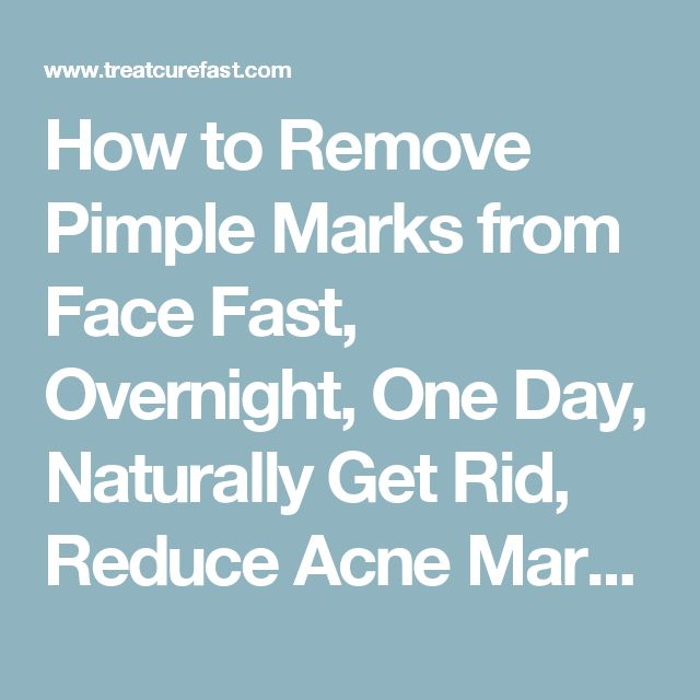 Best 25 pimple marks ideas on pinterest pimples on body black how to remove pimple marks from face fast overnight one day naturally get ccuart Image collections
