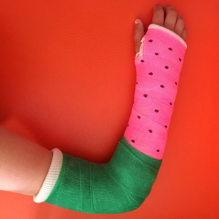 Best colour for an arm cast 'watermelon' Alex Fulton Design Instagram @helloalexfulton