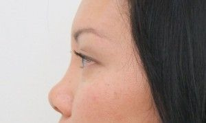 Improve the appearance and proportion of your nose with a nose job.