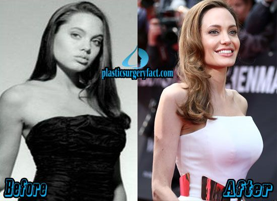 Pin By Elizabeth Gilardo On Celebrity Plastic Surgery  Angelina Jolie -6679