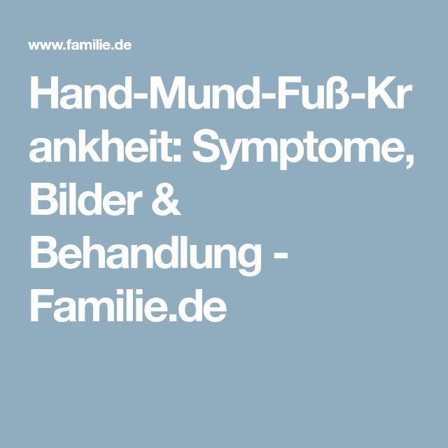 Hand-Mund-Fuß-Krankheit: Symptome, Bilder & Behandlung - Familie.de