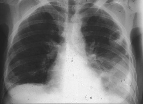 PURIFICACION DE AIRE AIRLIFE TE DICE. Los individuos con silicosis nodular simple no tienen dificultad para respirar, pero tienen tos y esputos debido a la irritación de las grandes vías aéreas, el proceso denominado bronquitis. La silicosis conglomerada puede causar tos, producción de esputo y ahogo.