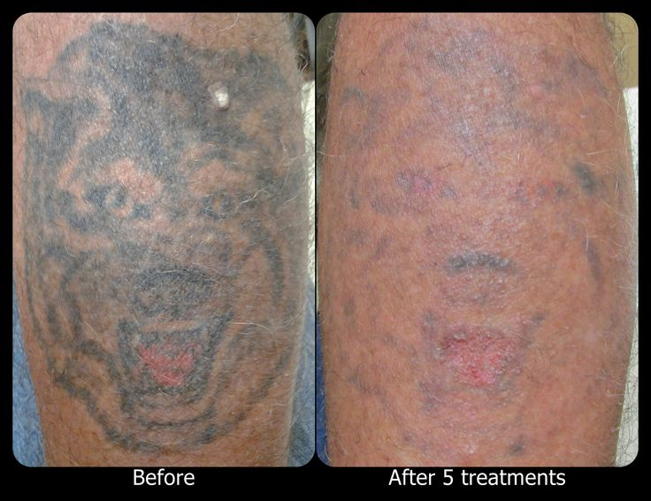 53 best images about vanish laser tattoo removal for Vanish ink laser tattoo removal