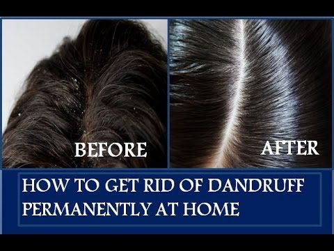 How to get rid of Dandruff permanently within a week - Home Remedies - 100% working -  CLICK HERE for The No. 1 Itchy Scalp, Dandruff, Dry Flaky Sore Scalp, Scalp Psoriasis Book! #dandruff #scalp #psoriasis Need a cure for dandruff? Hey guys! I really hope you all find this video on how to get rid of dandruff naturally at home useful! Dandruff is the most common hair problem... - #Dandruff