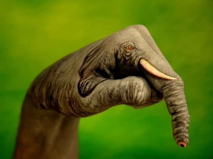 Elephantitis of the hand | yuppp | Pinterest | The o'jays ...