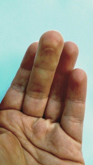 Pinched finger_my hand_zyla