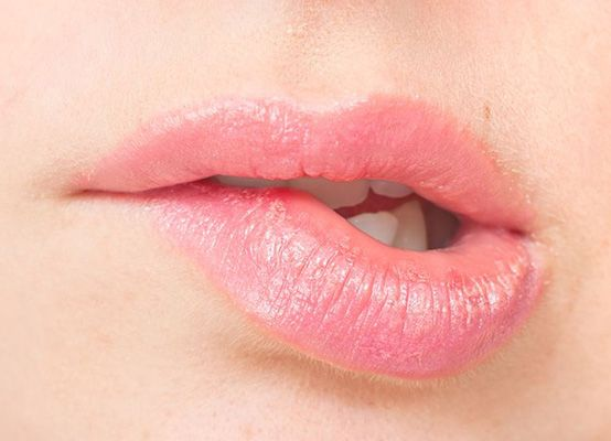 Nooit meer droge lippen - Tip