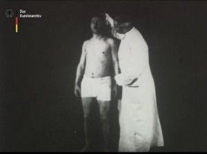 [Shell Shock Hypnosis] Hamburg neurologist Max Nonne was the most prominent proponent of hypnosis treatment for war neurosis. The German Federal Archive recently released a film depicting one of his assistant performing such suggestive hypnosis.