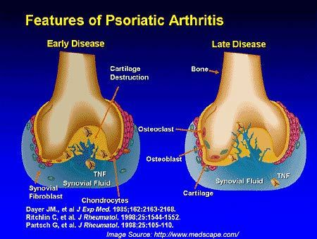 Psoriatic Arthritis: Causes, Signs, Diagnosis and Treatment