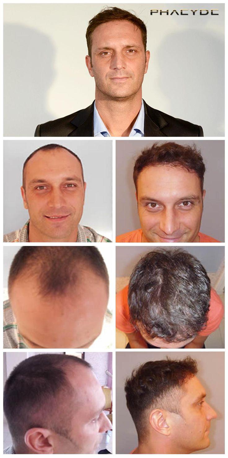 Trasplante de pelo de 4000+ Pelos - PHAEYDE Clínica Más de 4.000 ++ pelos fueron trasplantadas para la zona frontal y templos. Trasplante de pelo se llevó a cabo en la Clínica PHAEYDE. http://es.phaeyde.com/trasplante-de-cabello