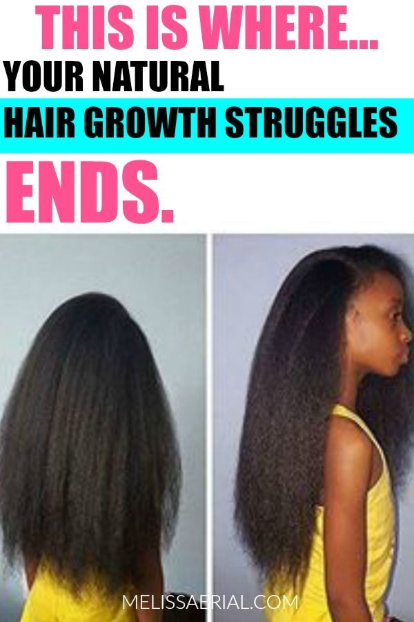 Hair Growth Secrets Using Natural Remedies For Longer Hair In 2020 Hair Growth Secrets Natural Hair Growth Natural Hair Styles