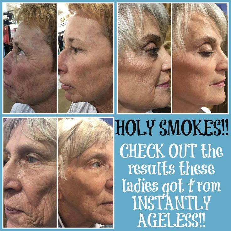 A teammate of mine did a show last week and these are some of the AMAZING results they had from the demos they did with Instantly Ageless!!