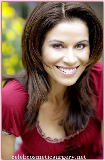 Jennifer Taylor Bra Size - Celeb Cosmetic Surgery