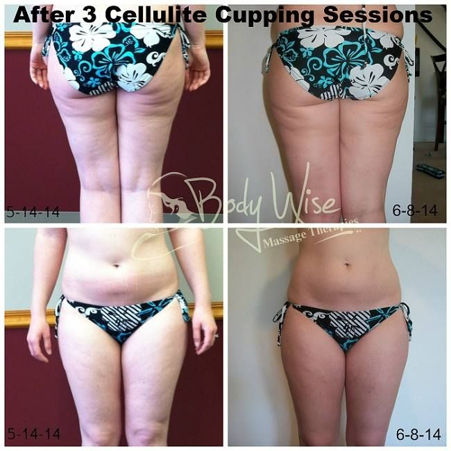 Cellulite suction cup before and after