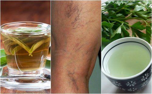 Se você sofre com estas veias dilatadas nas pernas, não perca as receitas destes cinco infusões para combater as varizes. Experimente!