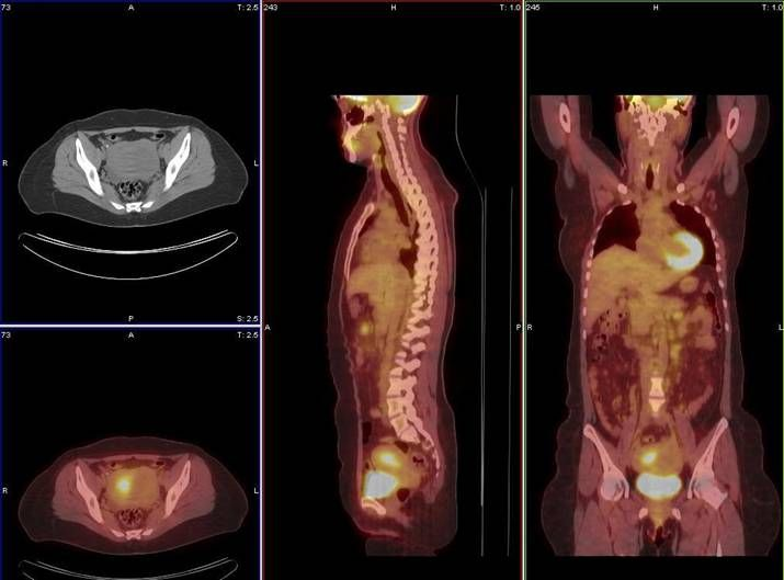 PET stands for positron emission tomography is an imaging test that allows doctors to check for disease in your body. A PET scan is typically an outpatient procedure, that means you will be able to go about your day after the test is complete.