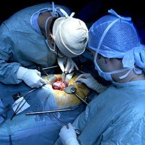 #KidneyTransplants Surgery Procedure