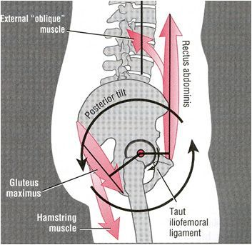 Rotate hip back to natural alignment= good (look at the alignment of the abs n biomechanics! :) anterior pelvic tilt correction