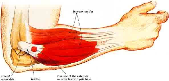 Tennis Elbow - nice website with stretching diagrams.  It even shows techniques for athletes and people who wish to prevent problems BEFORE they begin their activities.