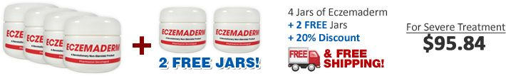 Eczemaderm | Eczema Treatment Cream | Excema