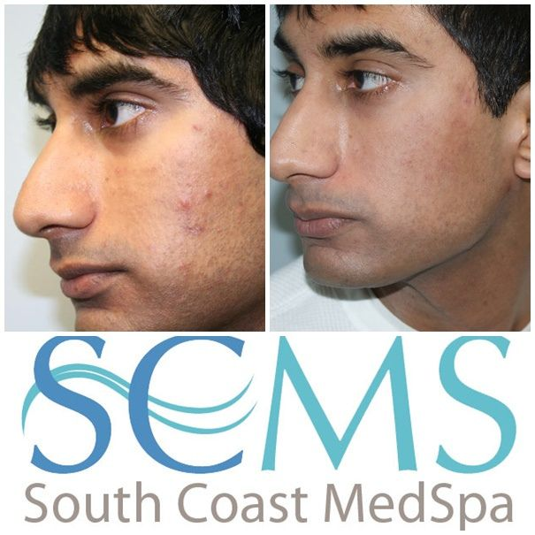 10 best laser acne scar removal images on pinterest acne scar cure you acne the simple way ccuart Choice Image